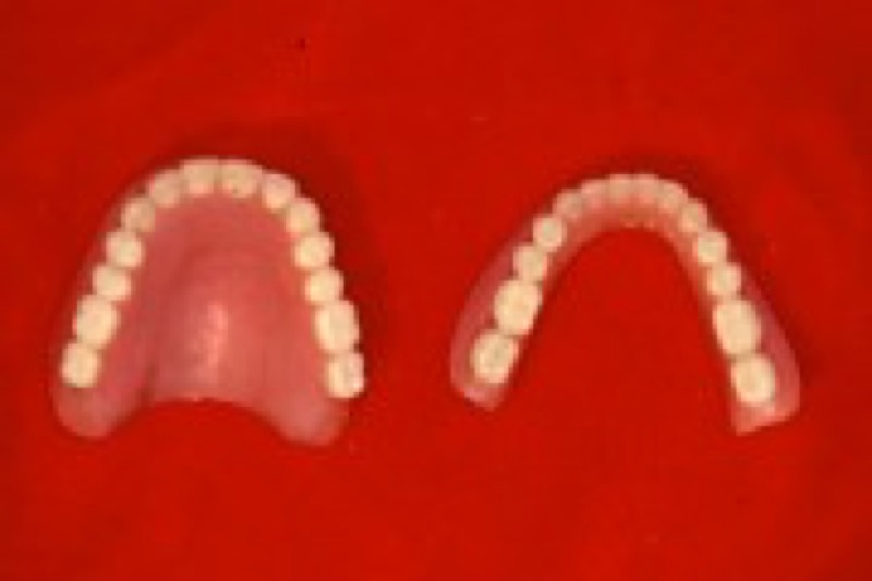 02.placement implants on the upper arch
