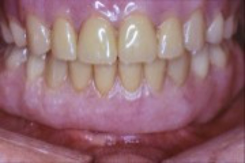 06.balls for implant supported over denture